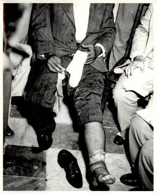 Pedro Albizu's swollen leg after leaving prison