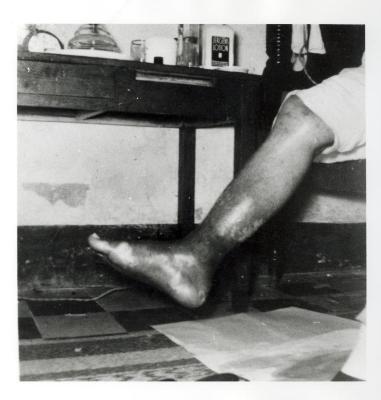 Leg of Pedro Albizu Campos